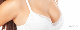 Breast Lift Model