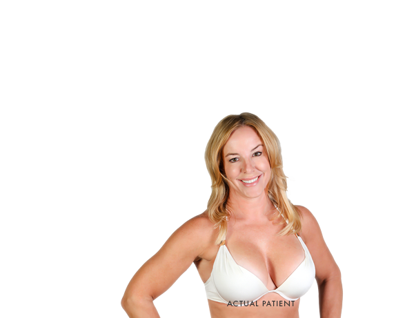 Breast Lift with Implants Model