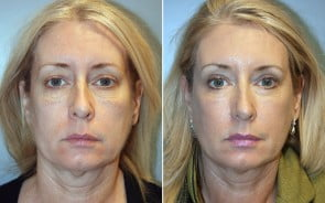 Fraxel Laser Skin Resurfacing Patient 1
