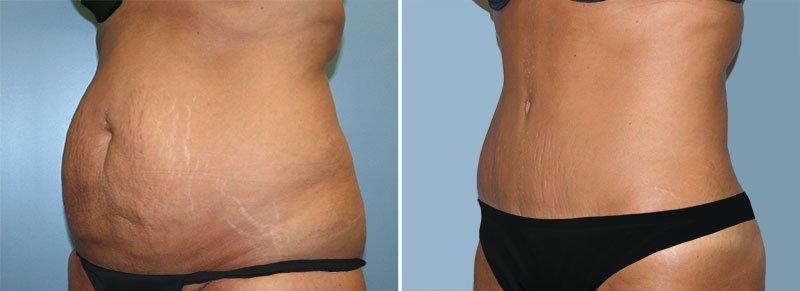Tummy Tuck Patient 2 Berks Plastic Surgery