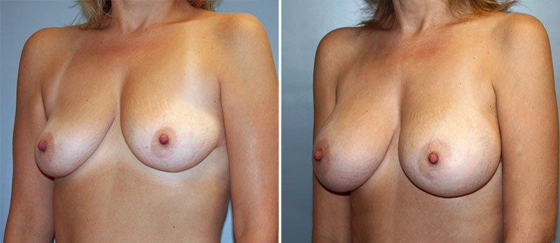 breast surgery lancaster pa jpg 1080x810