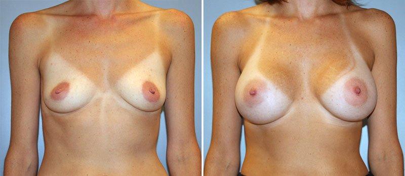 Entertaining pennsylvania breast implant augmentation