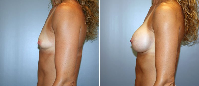 breast surgery lancaster pa
