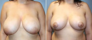 Breast Reduction Patient 5
