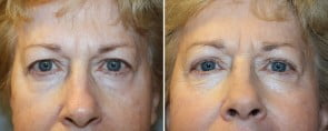 Eyelid Rejuvenation Patient 3