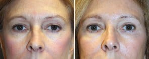 Eyelid Rejuvenation Patient 4