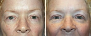 Eyelid Rejuvenation Patient 5