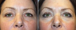 Eyelid Rejuvenation Patient 7