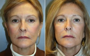 Fraxel Laser Skin Resurfacing Patient 5