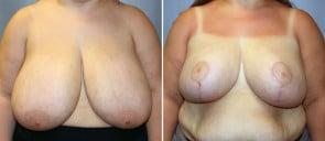 Breast Reduction Patient 3