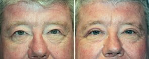 Eyelid Rejuvenation Patient 6