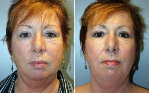 Fraxel Laser Skin Resurfacing Patient 2