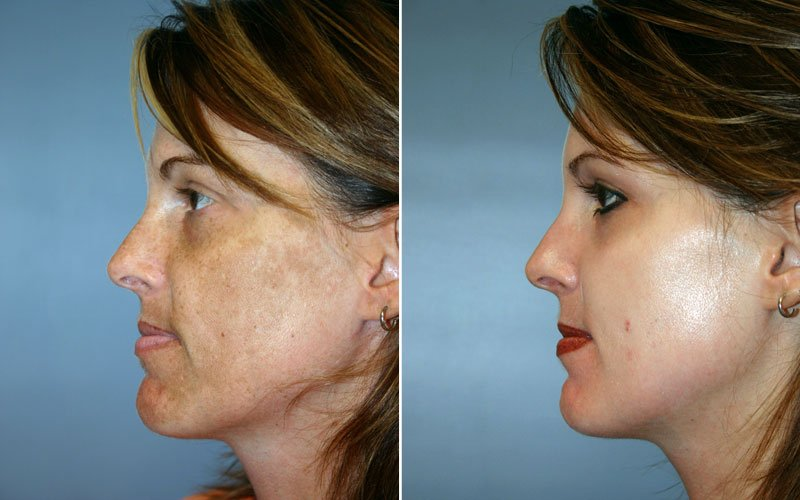 Obagi Blue Peel Patient 1 Berks Plastic Surgery