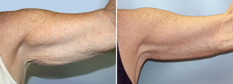 Scars From Upper Arm Lifts : Arm lift patient berks plastic surgery