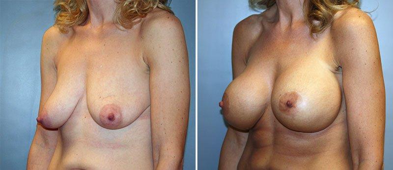 tied pierced tits videos
