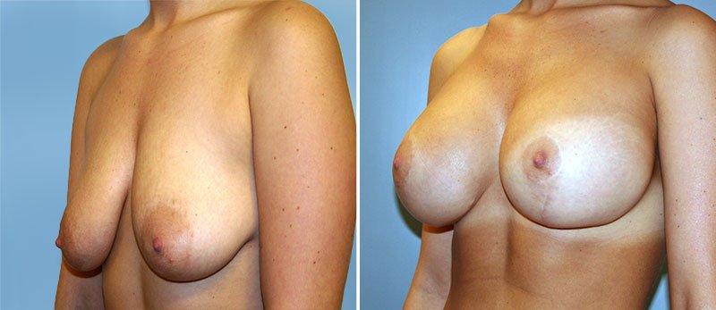 Breast lift augmentation photos