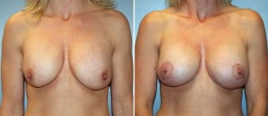 Breast Implant Revision Patient 1