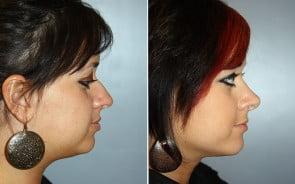Nose Surgery Patient 1