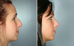 Nose Surgery Patient 2
