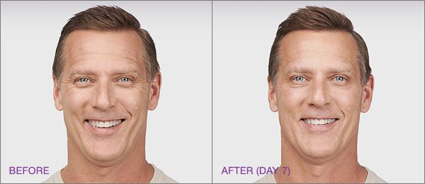 male botox before and after