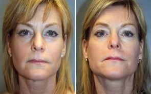 Facelift with Fraxel Laser Patient 1