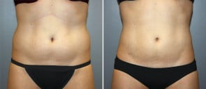 Liposuction Patient 5