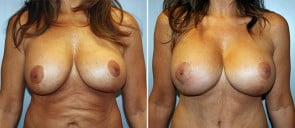 Breast Implant Revision Patient 2