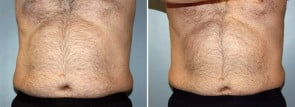 CoolSculpting® Patient 4