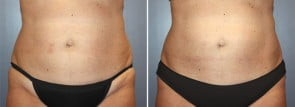 CoolSculpting® Patient 6