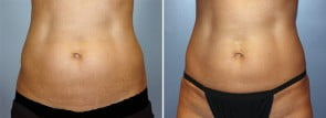 CoolSculpting® Patient 7