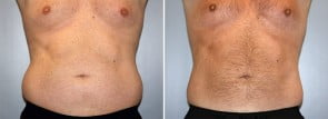 CoolSculpting® Patient 1