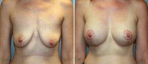 Breast Augmentation with Lift Patient 10