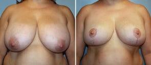 Breast Reduction Patient 6