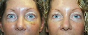 Eyelid Rejuvenation Patient 8