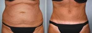 CoolSculpting® Patient 9