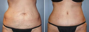 Tummy Tuck Patient 16