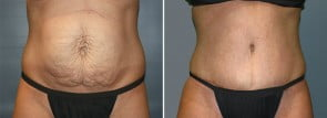 Tummy Tuck Patient 17