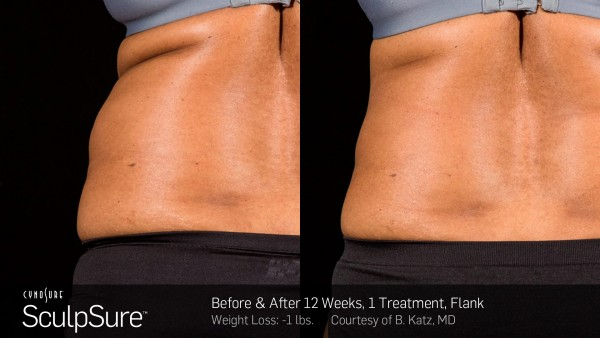 Negative effects of coolsculpting elhouz
