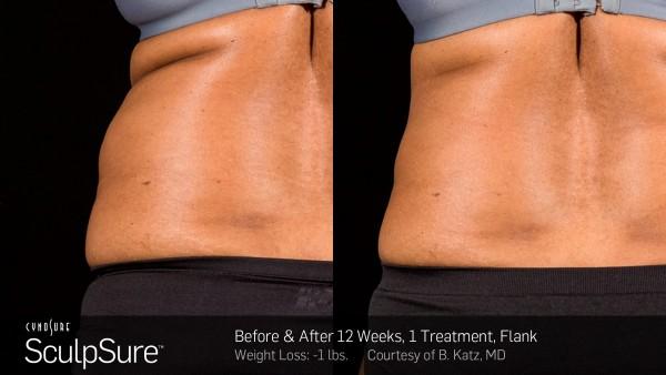 Dr Jennifer Walden | Non-Invasive Fat Reduction | Austin, TX