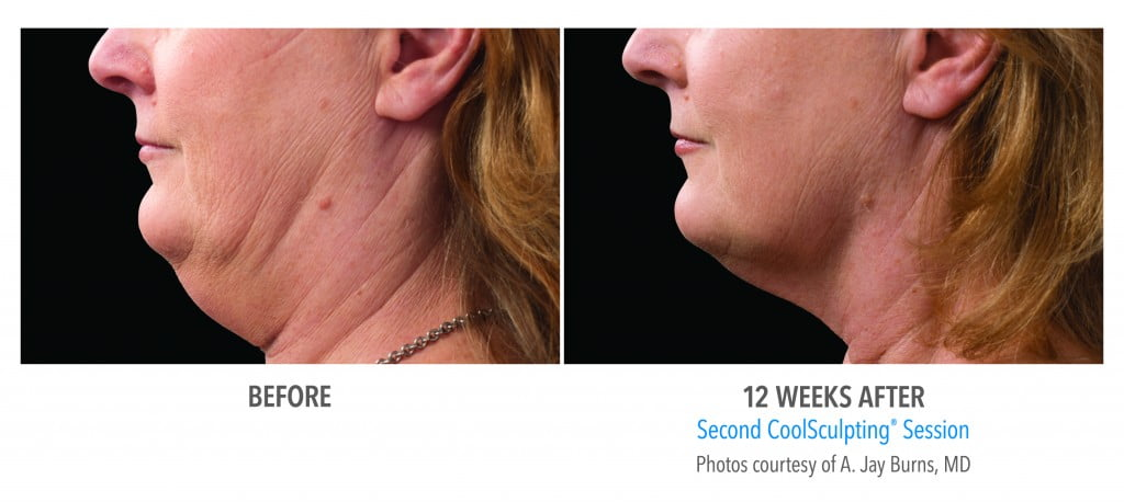 before and after second CoolSculpting Session