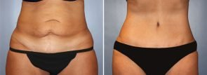 Tummy Tuck Patient 19