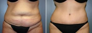 Tummy Tuck Patient 21