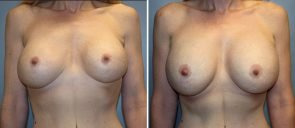 Breast Implant Revision Patient 3