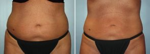 CoolSculpting® Patient 10