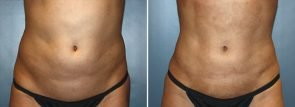CoolSculpting® Patient 11