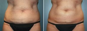 CoolSculpting® Patient 12