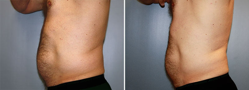 coolsculpting-7732c-male