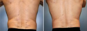 CoolSculpting® Patient 13