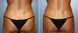 Liposuction Patient 6