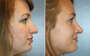 Nose Surgery Patient 4